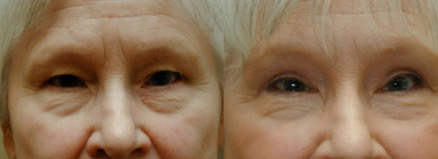 Before and after facial rejuvenation procedure